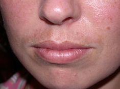 Best Melasma Upper Lip Treatment: 3 Steps to Fade Your Sun-Stache Fast
