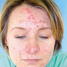 Home Remedies For Acne Scars - Natural Treatments & Cure For Acne Scars | Find Home Remedy