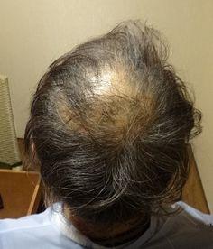 少し生えてきたからといってすぐに安心してはダメ! ≫ 発毛率98.7%と最短3ヶ月のスピード発毛サロンのブログ