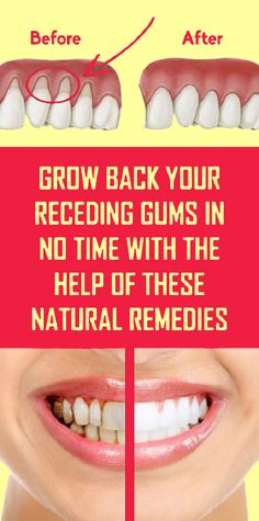 Treat Receding Gums Naturally Using These Methods - TheHealthRays Gum Health, Oral Health, Health And Nutrition, Health And Wellness, Health Tips, Health Fitness, Honey And Lemon Drink, Foods For Brain Health, Good Brain Food