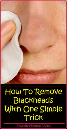 All of us desire to have clear skin, but those little parasites named blackheads occur between our wishes. Blackheads are very small pimples with no skin on them, and because … Get Rid Of Blackheads, Blackhead Remover, Tips Belleza, Pole Dancing, Natural Living, Oily Skin, Healthy Tips, Stay Healthy, Healthy Beauty