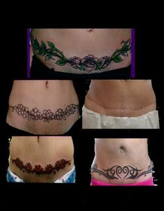 tribal tattoos to cover stretch marks on tummy | Scar Cover Up & Tummy Tuck Cover Up