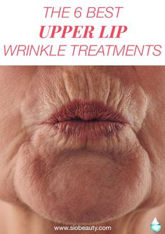 Are you starting to see fine lines form on your upper lip? Not sure where to find the best upper lip wrinkle treatments? We're here to help. Upper lip wrinkles typically begin to show. Smokers Lines, Lip Wrinkles, Wrinkle Remedies, Get Rid Of Blackheads, How To Line Lips, Upper Lip, Younger Looking Skin, Best Anti Aging, Beauty Skin