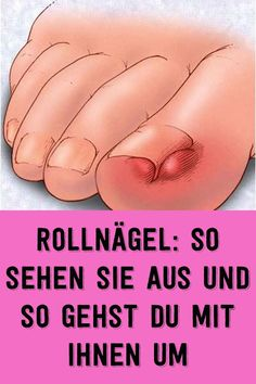 Rollnägel: so sehen sie aus und so gehst du mit ihnen um Roll nails: that's what they look like and so you go with them Pin On, Night Makeup, Benefit Cosmetics, Tea Tree Oil, Makeup Trends, Health Diet, Amazing Gardens, Good To Know, Beauty Tutorials