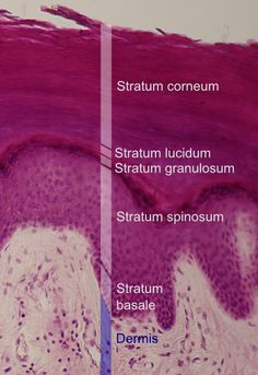 What are the 5 Epidermis Layers?