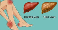 The liver is one of the main organs in the body. It's responsible for many…