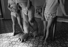 chernobyl health photos - Google Search