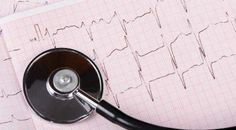 Eelectrocardiograms (EKG) test the electrical activity of your heart and checks for abnormalities. Carotid Artery, Cardiology, Fort Myers, Physical Activities, Your Heart, How To Find Out, Medical, Learning, Monitor