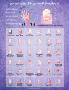 Ayurvedic Fingernail Analysis Poster, 18 by 24 inch, 1 5 mil glossy lamination - health-fitness Ayurvedic Healing, Holistic Healing, Natural Healing, Holistic Medicine, Ayurvedic Diet, Ayurvedic Recipes, Ayurvedic Medicine, Health And Beauty, Health And Wellness