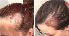 Health Facts, Beauty Hacks, Hair Beauty, Healthy, Hair Styles, Tips, Logo, Fashion, Medicine