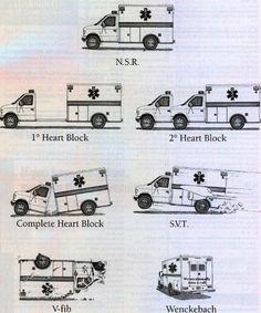 memory aid for cardiac rhythms