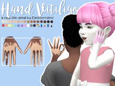 Eenhoorn  Hand Vitiligo    Vitiligo is pretty common on the hands, so I felt like sims needed this too. Also, yes, this is real vitiligo, can confirm: my dad has the exact same patterns on his hands too. I wanted to make his vitiligo in the Sims 4.     Information  🔹  Great for both normal and berry sims.  🔹  Can be found in Skin Details, near the freckles.  🔹  No custom thumbnails.  🔹  Disabled for random  🔹  Made with Sims 4 Studio    Download (SFS)  Naturals ~ Unnaturals