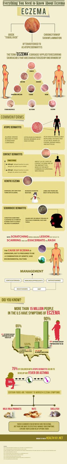 #Eczema Natural Treatment Infographic. Give Derma-Ease with Emu Oil a try! http://www.longviewfarms.com/Derma_Ease_psoriasis_eczema_cream_p/de4.htm