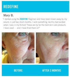 Rodan + Fields Redefine - Amazing Results   https://jhookey.myrandf.com/