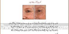 Best Home Remedies To Remove Wrinkles & Fine Lines In Urdu & Hindi - Part 2