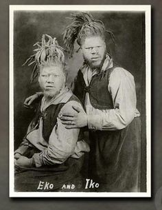 The Muse brothers were born in Roanoke, Virginia during 1890s. In 1899, the pair was kidnapped by bounty hunters working for an unknown sideshow promoter. They were seen as extremely lucrative attraction, as they were black albinos. The brothers also toured with Ringling Bros and Barnum & Bailey Circus in the 1920's.  In 1927, the brother's mother tracked them down and demanded their release, was given. George Muse died 1971,  amazingly Willie lived until 2001 and died at the age of 108.