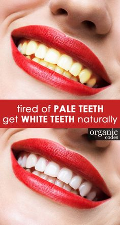"Tired of ""Pale teeth"" get ""White Teeth"" Naturally - Click to see some unexpected benefits of ayurvedic organic oil pulling Oil Pulling Benefits, Get Whiter Teeth, Coconut Oil Uses, White Teeth, Organic Oil, Amazing Ideas, Ayurveda, Tired, Health"
