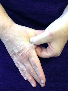 How can reflexology help support you through the menopause