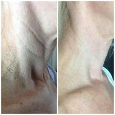 Amazing results with Nerium AD.  Order yours today at www.wrinkleresults.nerium.com