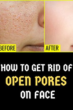 Looking for best natural treatment to get rid of open pores? if yes, so check out home remedies for open pores close at home Big Pores On Face, The Face, Wrinkles On Face, Face Mask For Pores, Face Masks, Get Rid Of Pores, How To Get Rid Of Acne, How To Close Pores, How To Open Pores