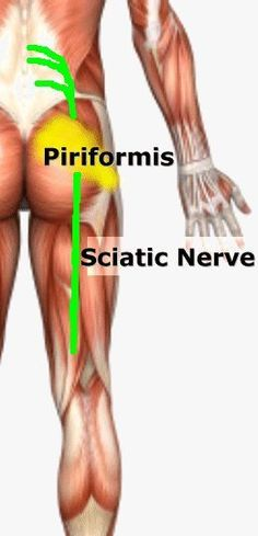 Sciatic due to piriformis... all I know is it appears to be a pain in the butt.