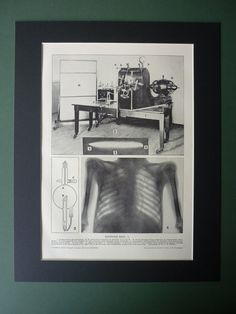 """1922 X-Ray Print, Matted To Fit 14"""" x 11"""" Frame - Funk & Wagnells - Roentgen - Medical Oddity - Hospital Equipment"""