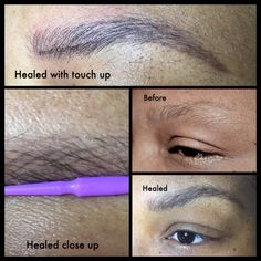 HEALED Super happy with the results on an oiler skin type. When researching an artist ALWAYS ask to see #healed work!! 404-348-4456 #atlanta #heidicosmetictattoo #microblading #spcp #cpcp #microbladingatlanta  #realism #browdiaries #eyebrowtattoo #brows #hairstrokes #alopecia #eyebrows  #trich #trichotillomania #healedpermanentmakeup #autoimmunedisease #hairloss #thyroid #drjohnconnors #changinglives @johnconnorsmdplasticsurgery