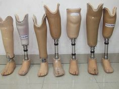 Kaki Palsu Bawah Lutut Import; SPESIFIKASI BAHAN : LAMINATED SOCKET MODULAR STAINLESS IMPORT SACHFOOT IMPORT