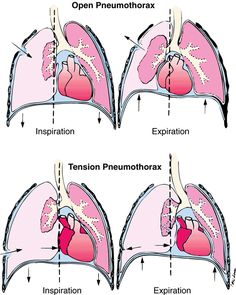 1000+ images about Exam 1 - Respiratory on Pinterest ...