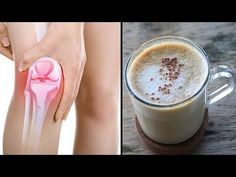 Drink this drink to get rid of knee and joint pain in 5 days! – Y … - gesundheit Fitness Workouts, Healthy Tips, Healthy Skin, Types Of Arthritis, Health Promotion, Feet Care, Natural Health, Smoothies, The Cure