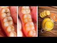 Découvrez ces remèdes naturels faits maison pour traiter les caries et améliorer la santé de vos dents... Natural Remedies For Cavities, Natural Cavity Remedy, Cavity Cure, Heal A Cavity Naturally, Cavity Healing, Cavity Pain, Natural Healing, Natural Home Remedies, Cure Tooth Decay