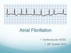 Atrial Fibrillation Cardiovascular ISCEE 26 th October 2010.
