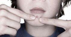#Cravos #acne #espinha #RemoverOsCravos