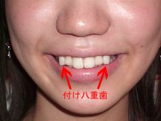 Yaeba: fad in japan that was really popular 10 years ago- Unlike the US, in Japan Crooked teeth are actually considered endearing- So, like anywhere, people were actually getting their teeth cosmetically altered at the dentist!!! Now I have started noticing how many pics of Japanese stars, men and women, have teeth like this!