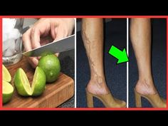 If you are between 20 & 70 years old, watch this video on the lemon until the end, you will be very Varicose Veins, Cooking, Stuff Stuff, Lemon, Heels, Women