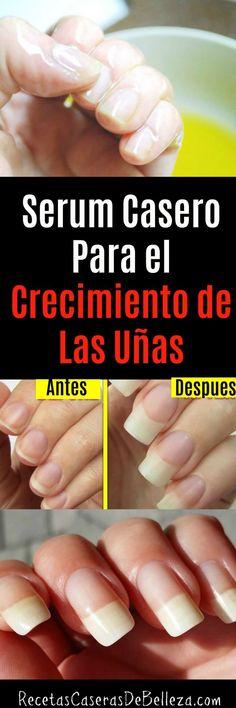 Home Serum für das Nagelwachstum: Diy Beauty, Beauty Hacks, Beauty Tips, Nail Problems, Nail Growth, Coffin Shape Nails, Body Hacks, Homemade Facials, Healthy Nails