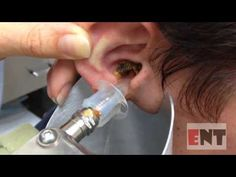 EAR WAX Removal techniques - YouTube