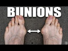 Bunions (Hallux Valgus): Exercises and Treatment - YouTube Bunion, Healthy Exercise, Feet Care, Excercise, Health And Beauty, Health Fitness, Fold Towels, Conversation Topics, Youtube