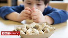 ¿Se pueden eliminar los alérgenos al cocinar los alimentos? ¿Puede alguien librarse con los años de una alergia? ¿Son realmente peligrosas las alergias o son solo una exageración? Te respondemos a estas y otras preguntas relacionadas con un problema que afecta aproximadamente al 5% de la población.