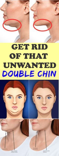Home Remedies To Get Rid Of Double Chin