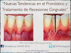 Videoconferencia: Nuevas tendencias en el pronóstico y tratamiento de recesiones gingivales | Odonto-TV