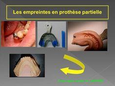 Les empreintes en prothèse partielle