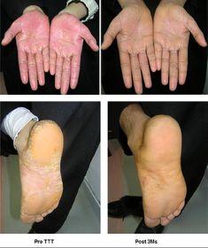 Psoriasis Arthritis, Such Und Find, Aloe Vera, Health Fitness, Foot Soak Vinegar, Shed, Health, Fitness, Health And Fitness