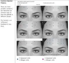 Forehead Botox injection pattern - - My MartoKizza Facial Fillers, Botox Fillers, Dermal Fillers, Botox Forehead, Botox Face, Botox Brow Lift, Eyebrow Lift, Botox Injection Sites, Botox Injections