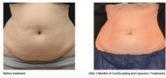 CoolSculpting Before and After Want to shed some extra body fat? Check out Cool Sculpting