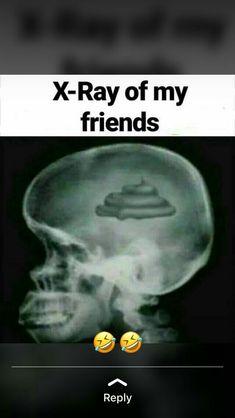 Funny Texts Jokes, Very Funny Memes, Latest Funny Jokes, Funny School Jokes, Some Funny Jokes, Jokes Quotes, Funny Relatable Memes, Stupid Funny, Funny Stuff