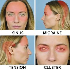 Different kinds of headaches Sinus Migraine, How To Relieve Headaches, Health And Beauty, Massage, Medicine, Remedies, Diy, Modern, Do It Yourself