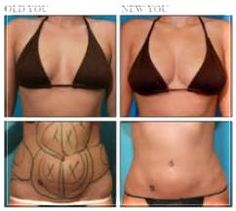 www.urbanbeautythailand.com Urban Beauty Thailand -Thailand Stemcell Breast Augmentation –  Natural Breast Augmentation, No Implants Required