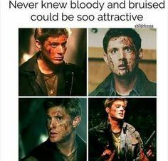 Dean Winchester   Jensen Ackles   Supernatural