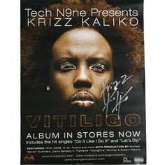 Krizz Kaliko – Vitiligo Autographed Poster Source by zackprestage
